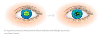 Dissolving contact lenses