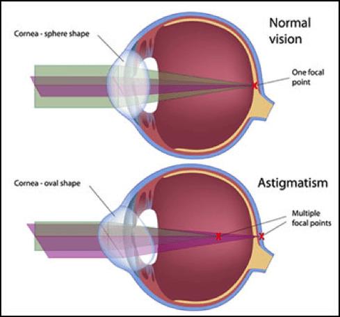 Normal Vision and Astigmatism
