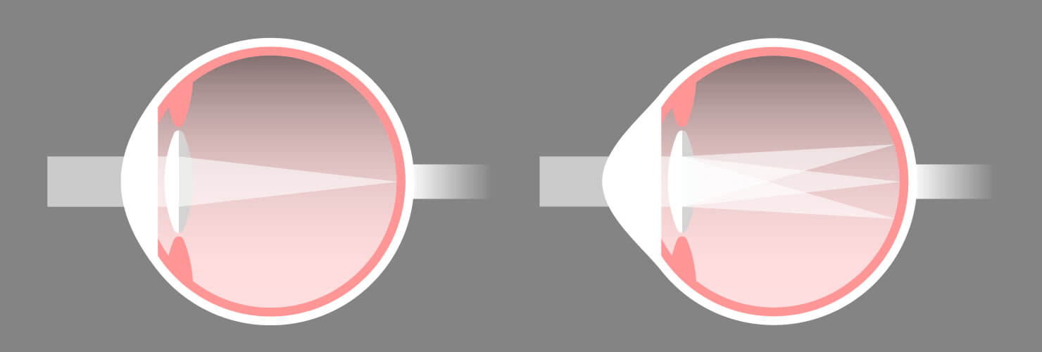Astigmatism eye vs normal eye