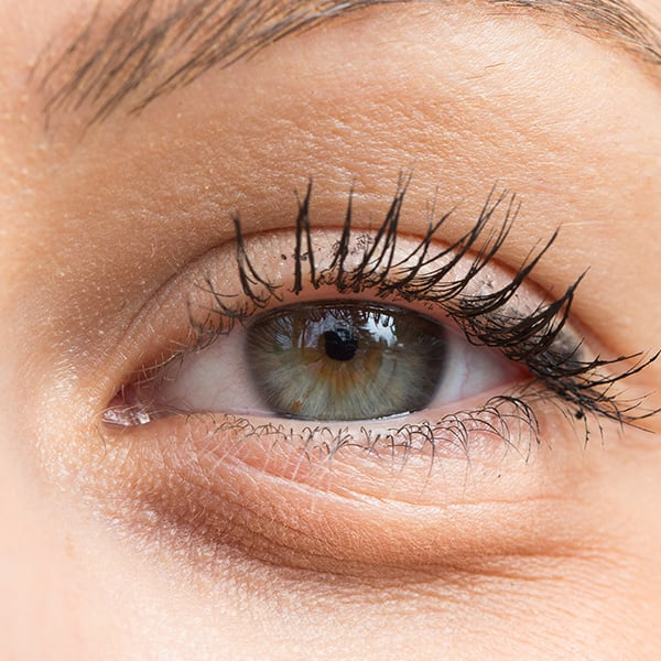 Occhio femminile gonfio