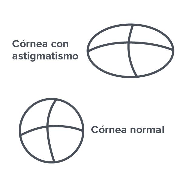 84fed4280e7bb Qué es el astigmatismo y cómo se corrige   Vision Direct