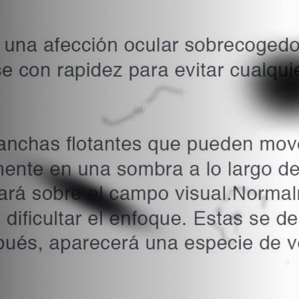 Como se ve con desprendimiento de retina
