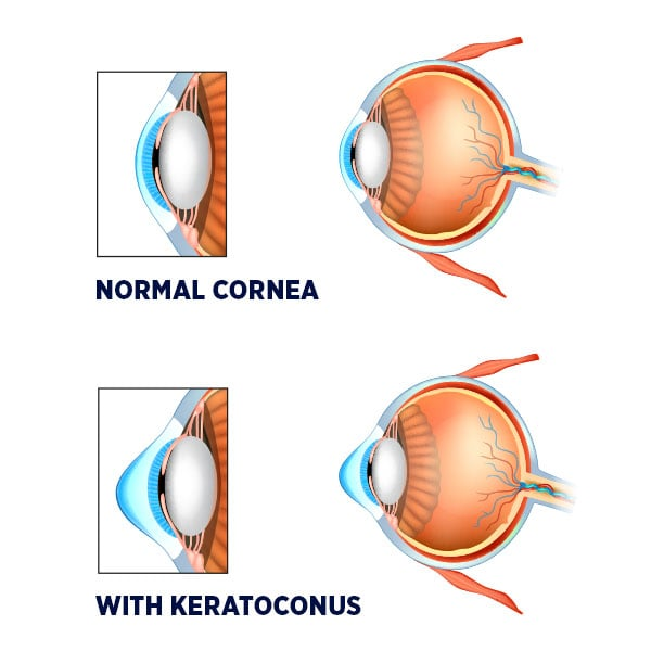 An eye with keratoconus