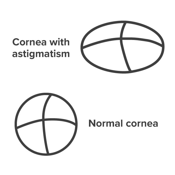 Cornea with astigmatism