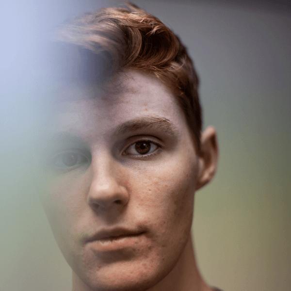 Gezicht van een jongen met acne