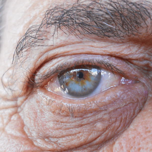 Eye colour also can change as we age