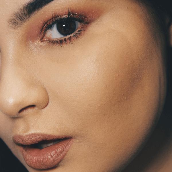 Il Roaccutan e l'acne