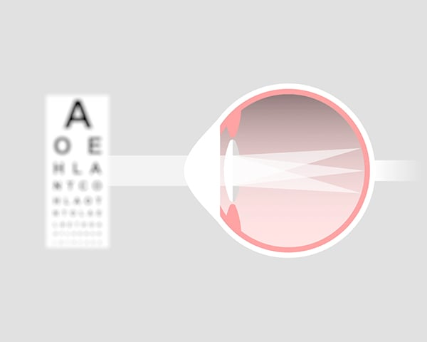 What vision problems do toric contact lenses correct?