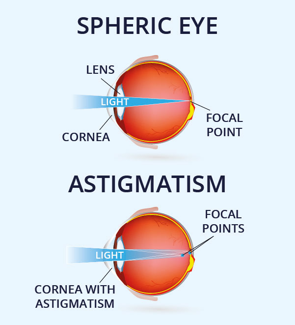 Graphic showing the difference between a spheric eye and one with astigmatism