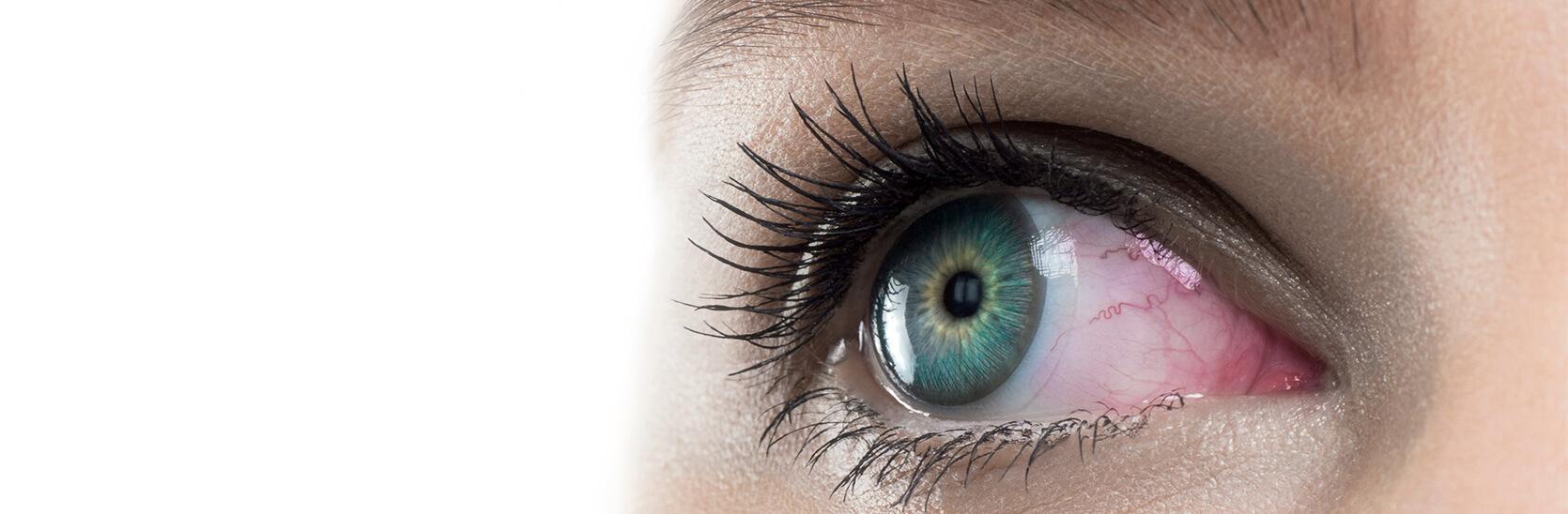 Lentillas y ojos rojos