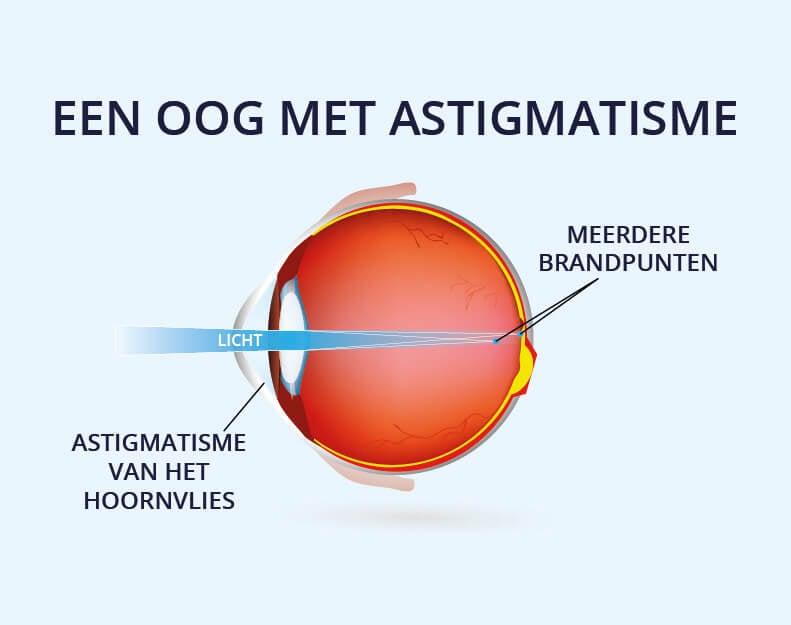 Een oog met astigmatisme