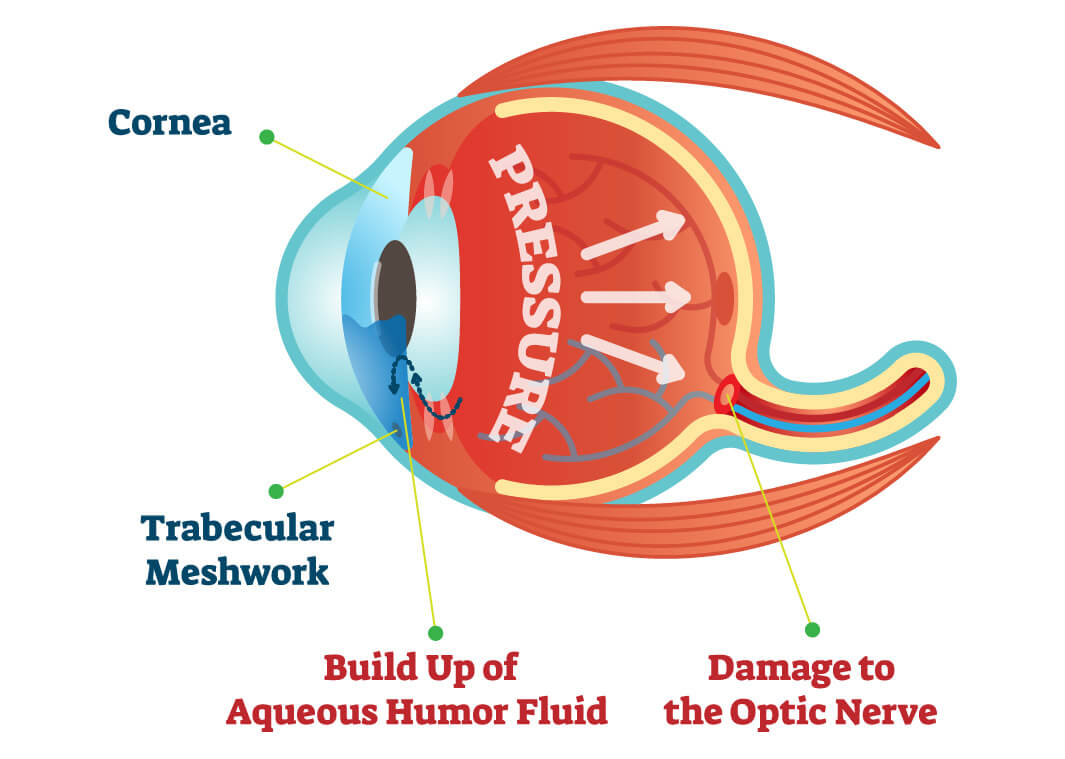 Infographic of glaucoma pressure build up