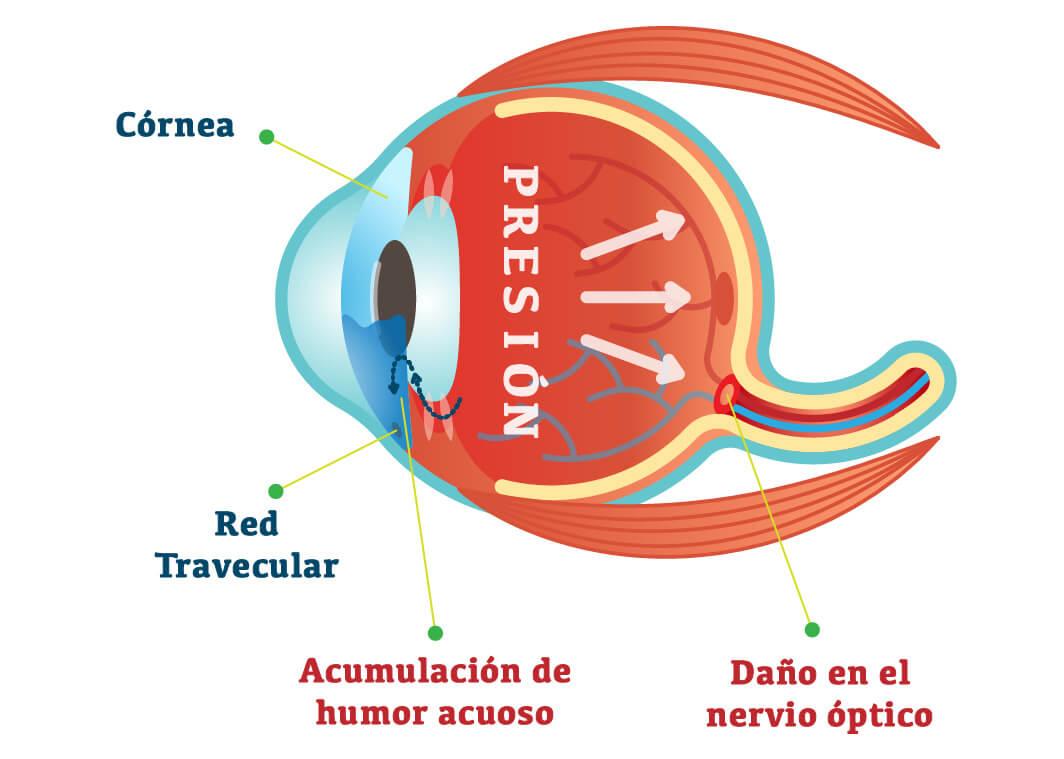 Gráfico glaucoma ocular