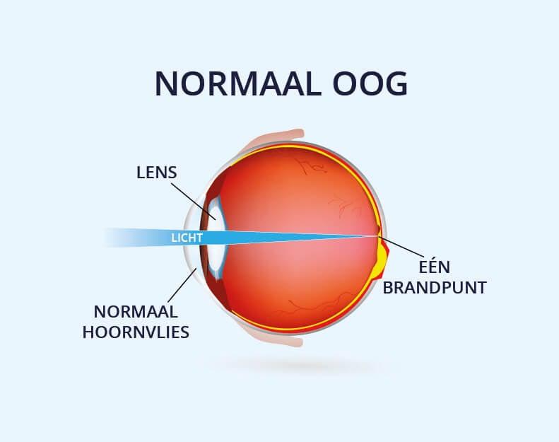 Normal oog