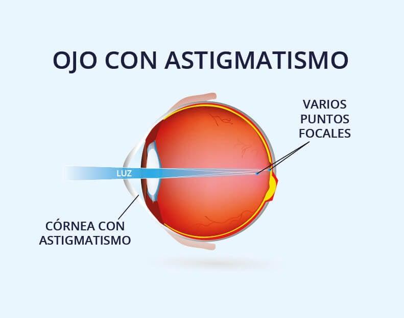 Ojo normal con astigmatismo